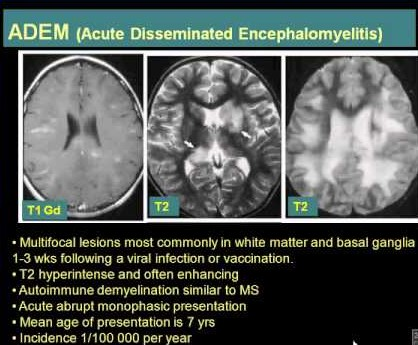 What Is White Matter Disease?